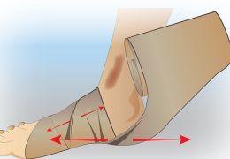 Как накладывать эластичный бинт при варикозном расширении вен