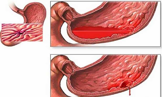 В число побочных эффектов от препарата входит кровотечение из пищеварительного тракта