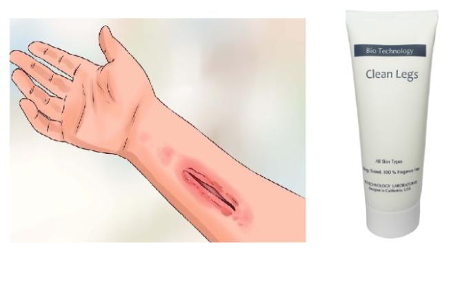 Противопоказаниями к лечению этим составом являются открытые раны на коже