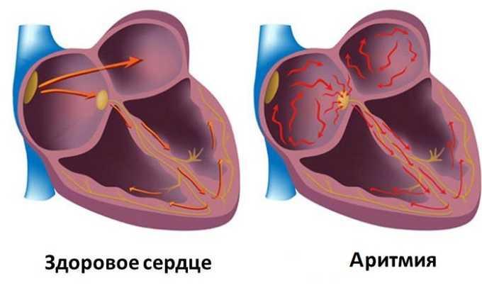 Винпоцетин Форте с осторожностью используют при аритмии