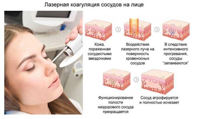 Лазерная коагуляция. Осуществляется мгновенная «сварка» поврежденных капилляров на больших участках кожи. После процедуры не остается никаких следов. Однако высока вероятность того, что купероз может рецидивировать