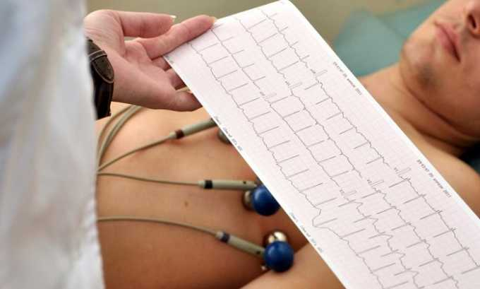 При комбинировании Винпоцетина Форте с медикаментами, пациентам следует обеспечить регулярный контроль ЭКГ