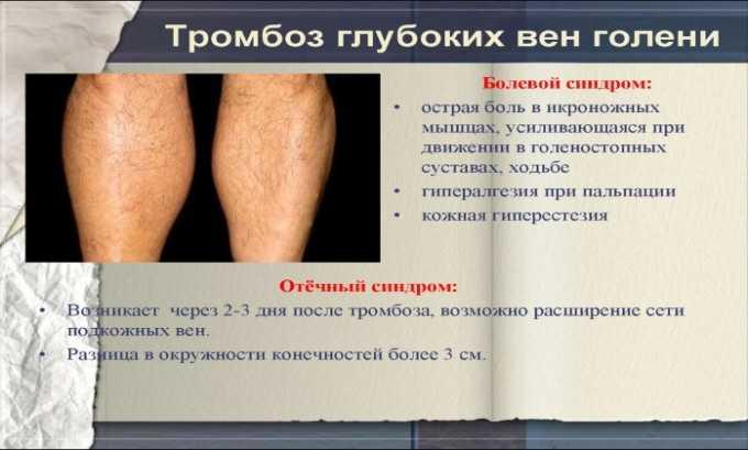 Препарат показан к приему при глубоком тромбозе вен