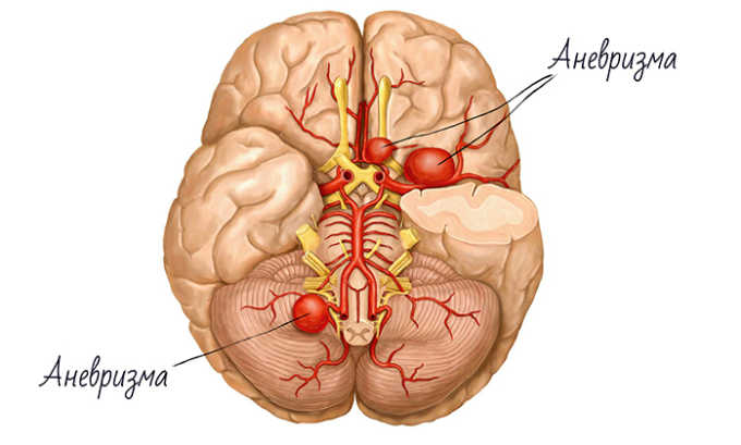 Нельзя лечиться этим препаратом, если пациент страдает аневризмой сосудов головного мозга