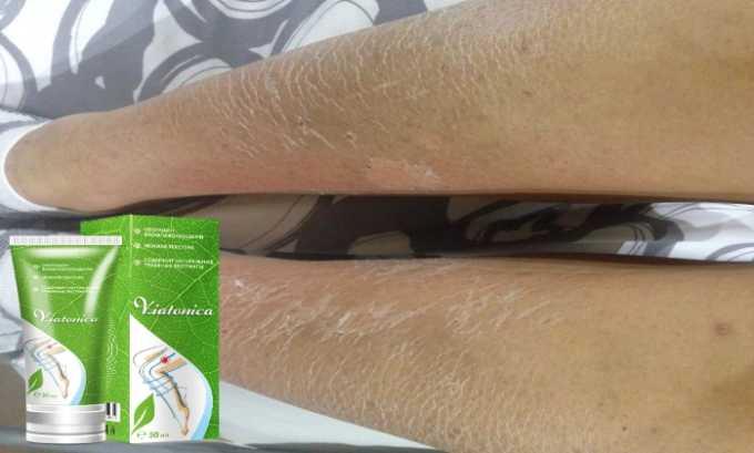 При пересушивании кожи данный препарат также уместен