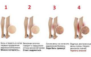 Эндовазальная лазерная коагуляция: лечение варикоза лазером