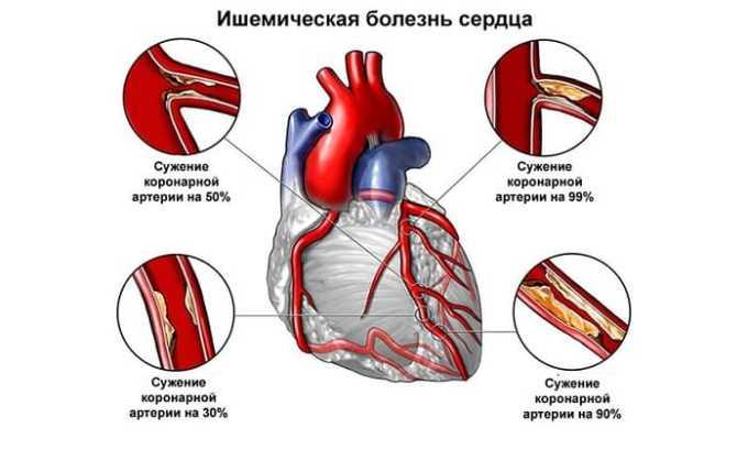 Аторвастатин 20 показан при ишемической болезни сердца