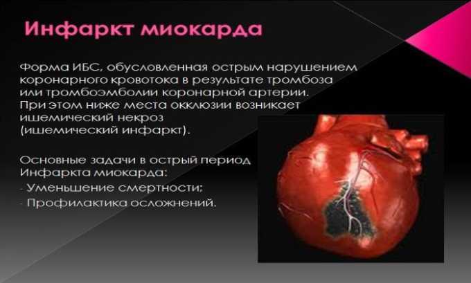 Препарат показан к приему при острой форме миокарда у больных с факторами риска