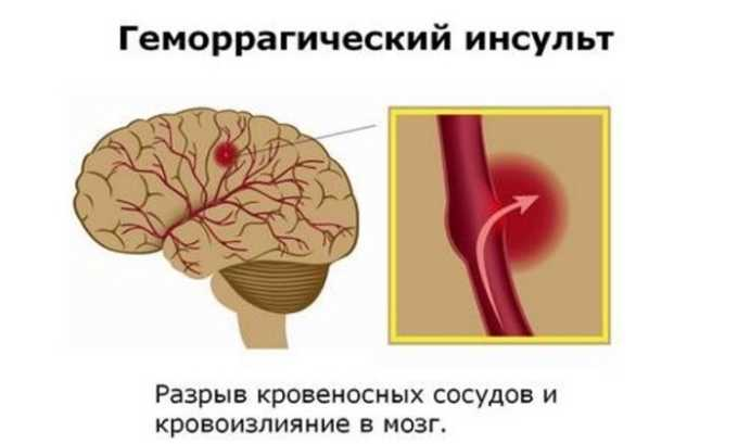Геморрагический инсульт - противопоказание к использованию препарата
