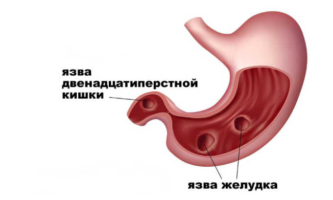 С осторожностью таблетки назначаются при язве желудка и 12-перстной кишки