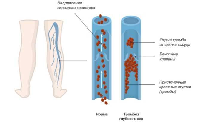 Прямым показанием к применению лекарственного средства считается тромбоз глубоких вен