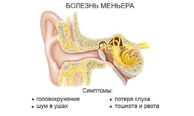 Болезнь Меньера - показание к применению Винпоцетина форте