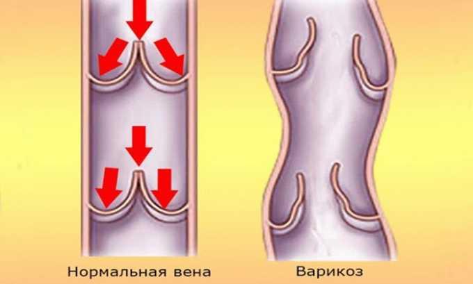 Лекарственное средство применяют при варикозе