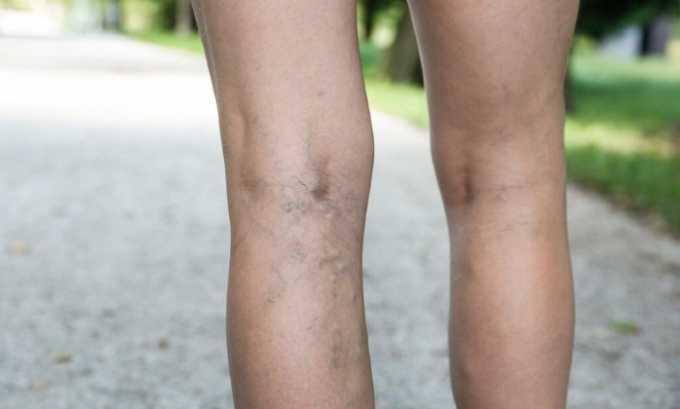 Аркистра назначают для предупреждения венозных нарушений