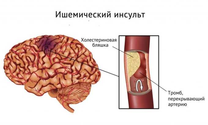 Препарат применяют при восстановлении после ишемического инсульта