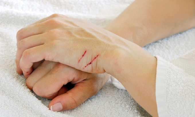 Актовегин помогает вылечить раны