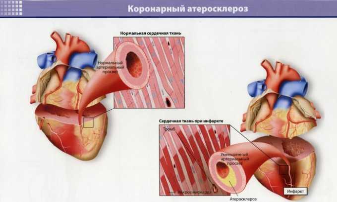 Липримар рекомендован для предупреждения развития коронарного атеросклероза