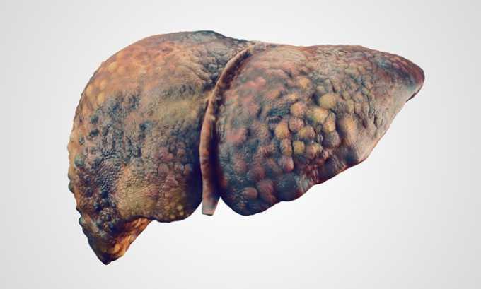 Использование Мертенила в таблетках противопоказано при заболеваниях печени в анамнезе