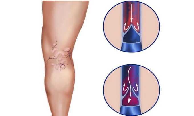 Гемапаксан показан людям, страдающим венозными тромбозами