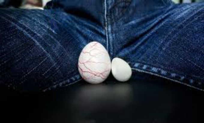 Увеличение размеров мошонки в большинстве случаев заметно у мужчин в вертикальном положении