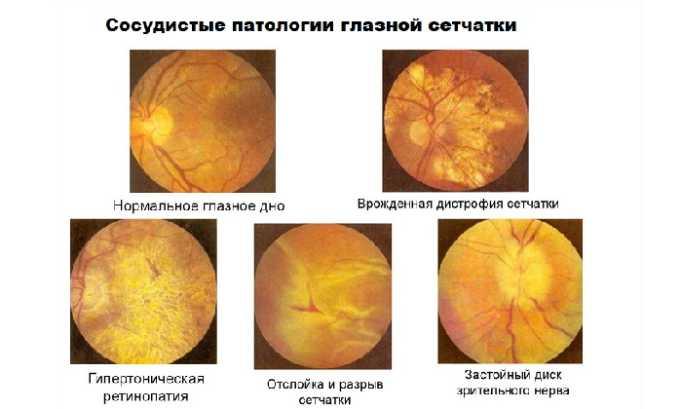 Лекарство показано при сосудистых патологиях глазной сетчатки