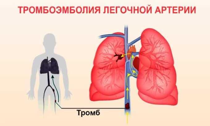 Аркистра назначают для терапии легочно-артериальной тромбоэмболии