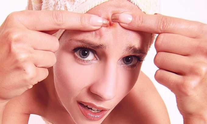 Механические повреждения кожного покрова могут привести к куперозу. Наиболее распространённым примером механического повреждения является ручная чистка кожи от угрей и прыщей