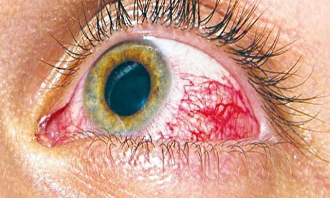 Побочным действием Ксарелто 10 может стать кровоизлияние в глазную сетчатку