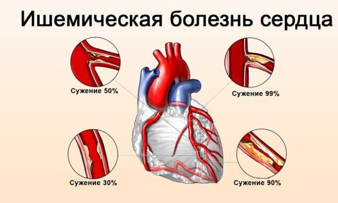Липримар показан для терапии ишемической болезни сердца (ИБС)
