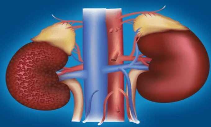 Принимать таблетки противопоказано, если у пациента имеются патологические состояния, характеризующиеся почечной недостаточностью