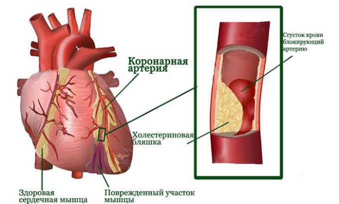 Кардиомагнил показан при инфаркте миокарда