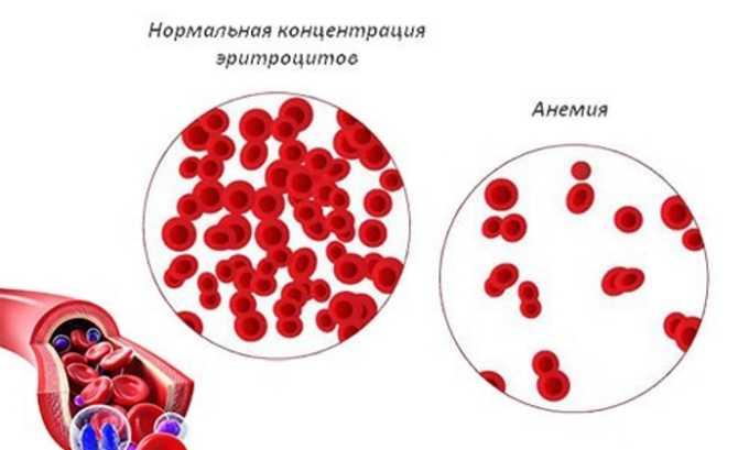 Арикстра может негативно влиять на систему кроветворения (анемия и др.)