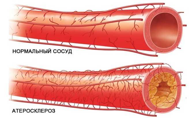 Противопоказанием к ношению компрессионного белья является атеросклероз