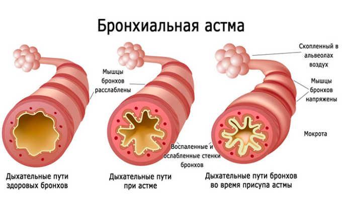 Прямым противопоказанием к употреблению КардиАСК является бронхиальная астма