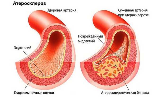 Розарт применяют для профилактики появления/терапии атеросклероза