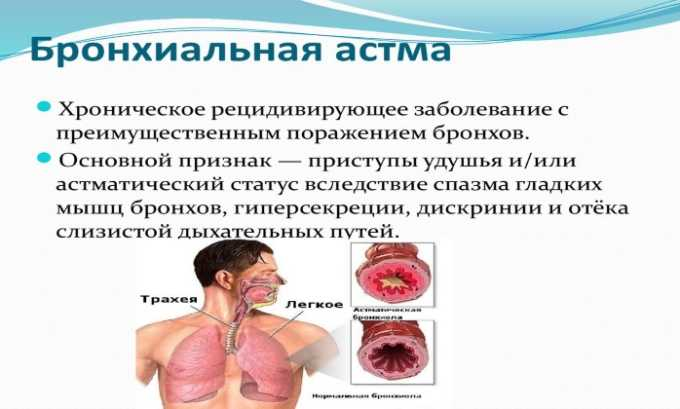 Побочные действия от препарата проявляются в виде бронхиальной астмы