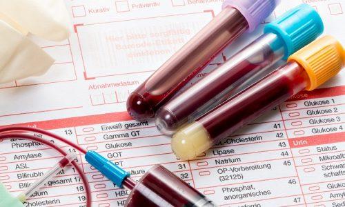 На протяжении терапевтического курса требуется контролировать состояние человека, он регулярно сдает лабораторные анализы