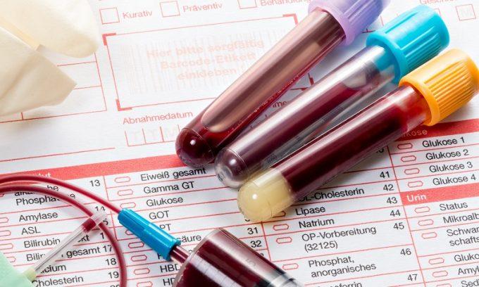 Больного с симптомами тромбоза кишечника срочно госпитализируют. Для постановления точного диагноза, врач в срочном порядке назначает анализы крови