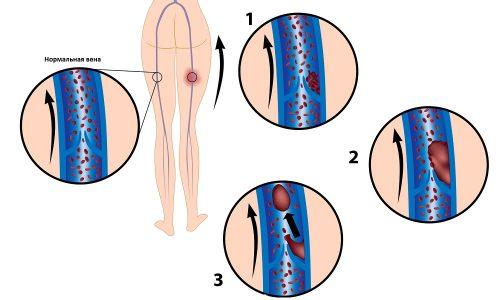 Флотирующий тромбоз при котором часть тромба прикреплен к сосудистой стенке, а другая его часть находятся в просвете сосуда. Данный вид тромбоза наиболее опасный, поскольку он может в любое время оторваться и по кровеносным сосудам двигаться через сердце, остановится в сосудах легких