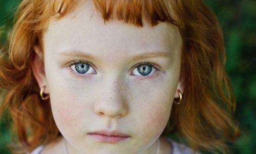 Чтобы не перепутать купероз на лице у ребёнка с иным заболеванием специалисты рекомендуют проводить дома первичное визуальное обследование