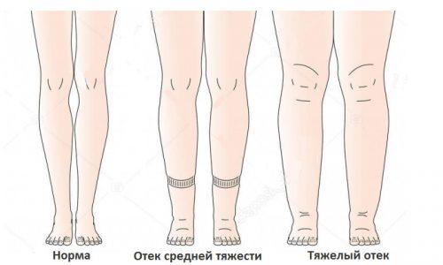 Отеки в ногах и увеличение их в объеме говорит об осложнении болезни