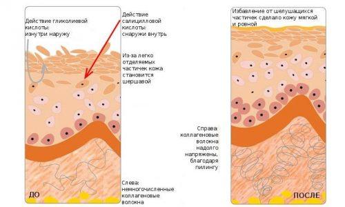 Многое производители косметических средств разрабатывают и выпускают щадящие химические пилинги для чувствительной кожи, один из таких – гликолевый пилинг
