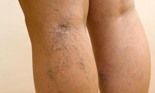Варикозное расширение вен на ногах – распространённая проблема. От этой болезни страдают спортсмены, работники офисов, продавцы, водители