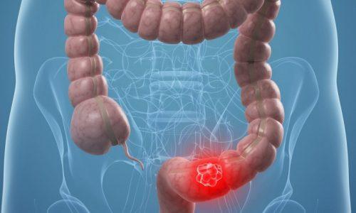 Тромбоз или эмболия сосудов кишечника, относится к серьезным патологиям органов брюшной полости, которая сложно подается диагностике