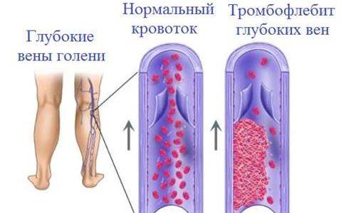 Опасные последствия тромбофлебита связаны с отрывом и перемещением кровяного сгустка по кровеносной системе