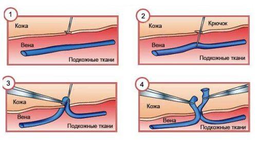 Метод Флебэктомии заключается в том, что вену со всеми ее узлами растягивают, вводя в просвет специальный зонд, а потом вытягивают наружу через небольшой разрез на коже