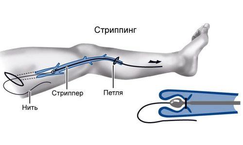 В процессе стриппинга наружу с помощью крючков вытягивают только сам варикозный узел