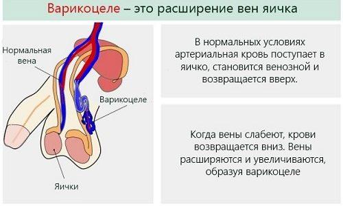 Последствия варикоцеле возникают не из-за тяжести лечения заболевания. Причина осложнений состоит в том, что вовремя обращаются к врачу не все мужчины