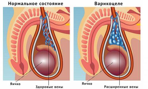 Операция Мармара назначается мужчинам при осложненном варикоцеле - патологии, связанной с варикозным расширением вен яичка