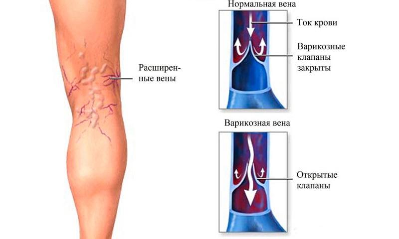 способы лечения варикоза на ногах без операции